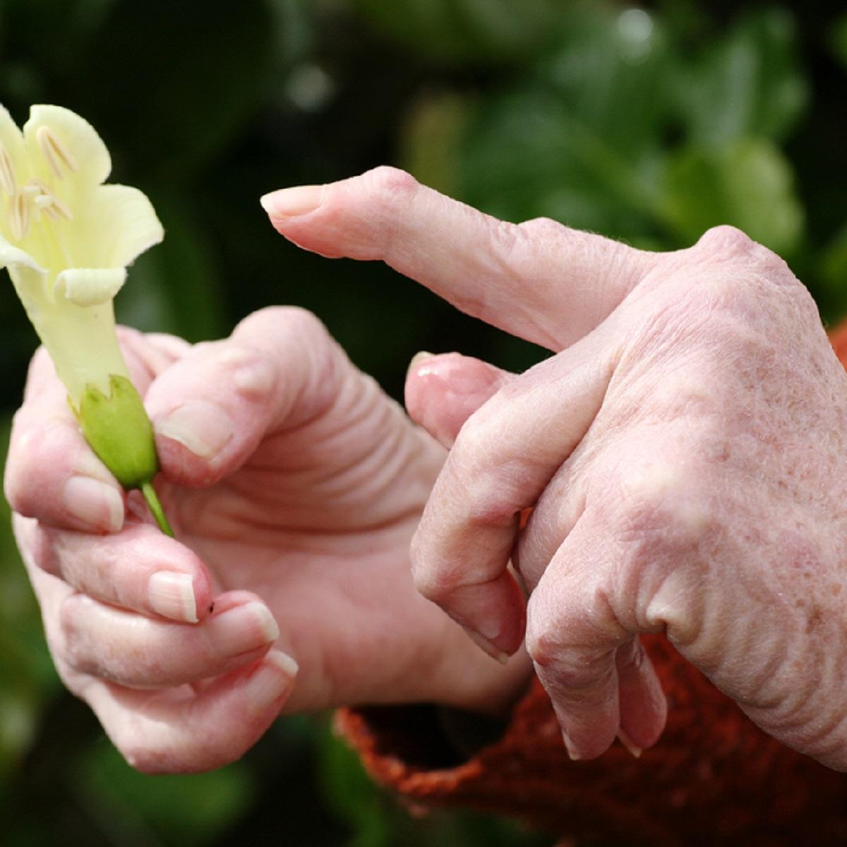 kate liigeste artriidi ravi valismaal kuunarliidete ravi