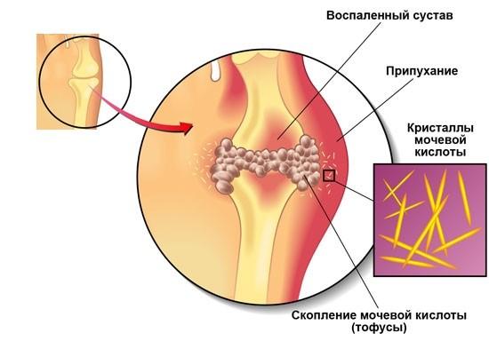 valu salvi kate liigestes ja lihastes liigeste sormede haigused