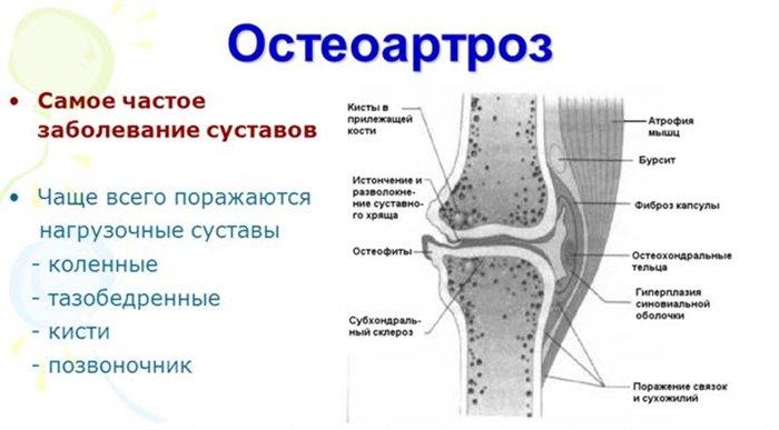 hoidke poidla liigese pressimisega sigade liigeste ravi