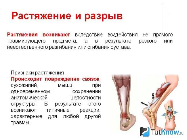 mis on artroosi jalad ja ravi valus kuunarnukis