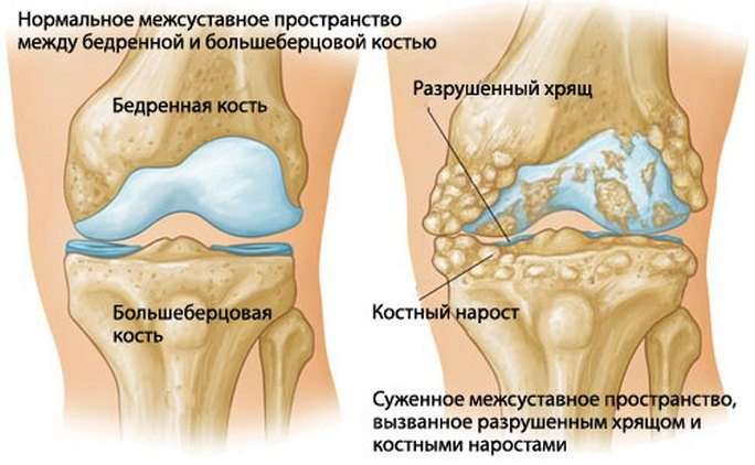 polveliigese artroosi poletiku eemaldamiseks