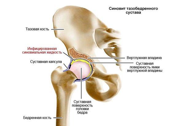 liigeste konkreetsed haigused