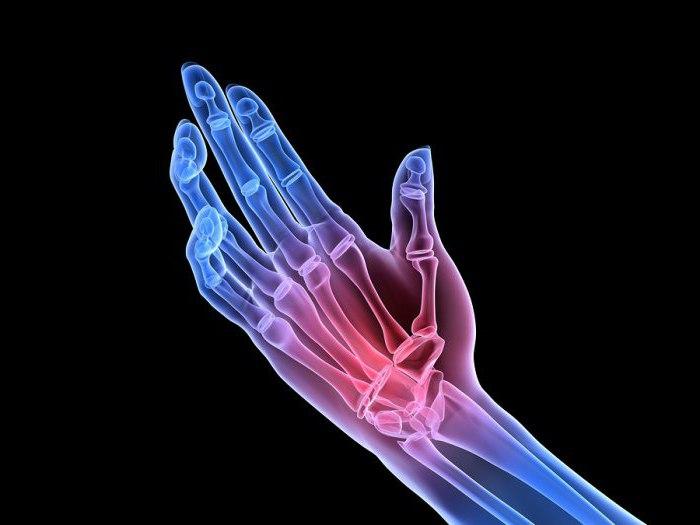 krooniline liigesevalu valus liigesed ja sormed