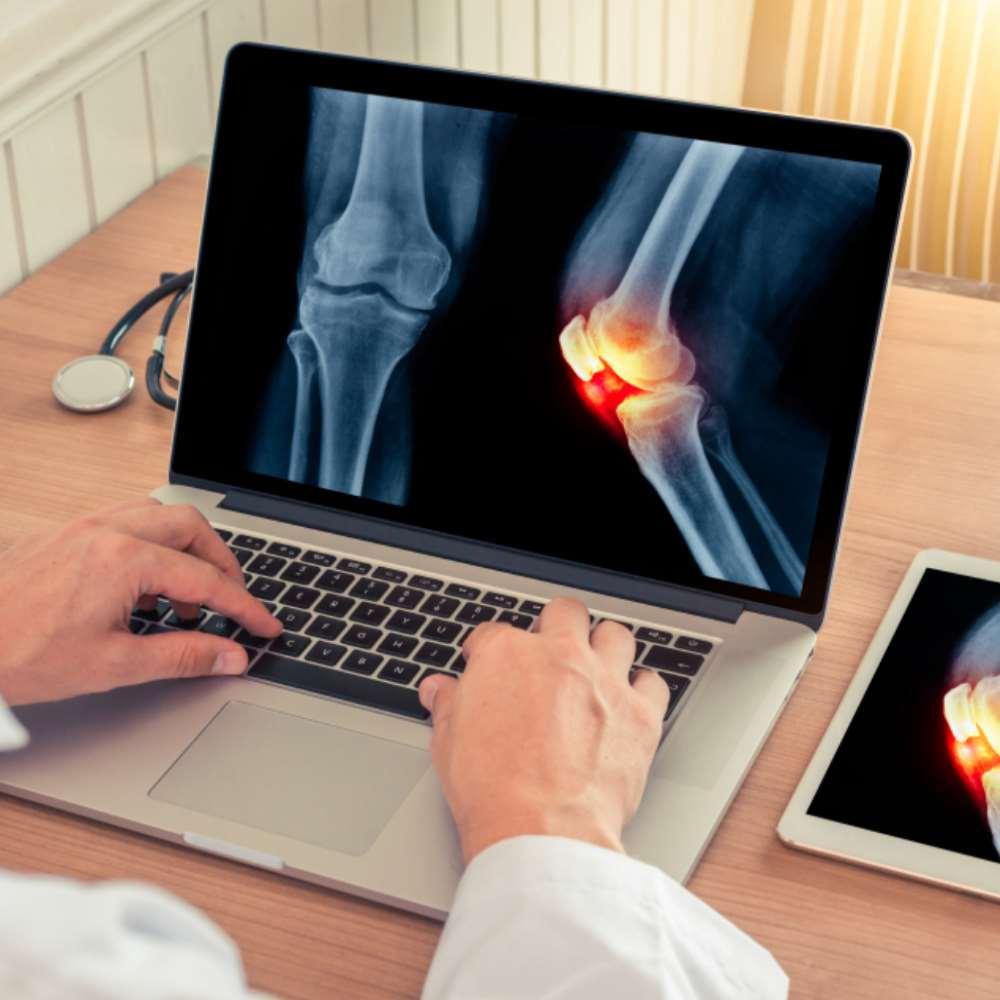uhenduse vahetamine artroosis