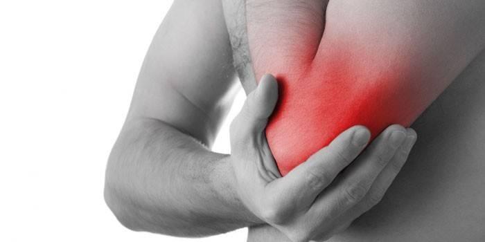 sustav turse kui eemaldada ravi traumaatilise artriidi sormede