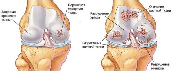 liigeste klassifikatsioonihaigused kui valu polveliigendis kui ravida