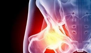 noori vanuse liigeste valu pohjused osteokondroos glukoosamiini kondroitiin