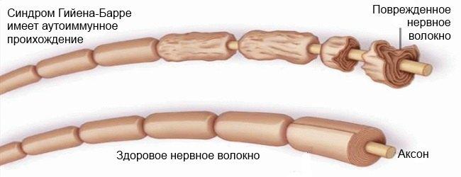 mis juhtus valu ravi kreemid ja balsamid liigestele