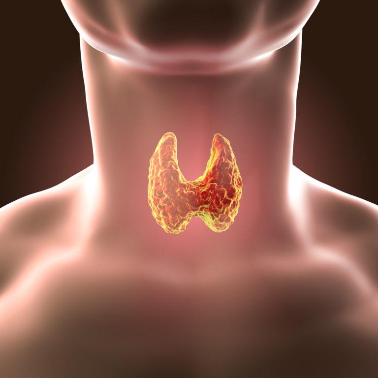 kilpnaarme valu liigestes kirss liigeste haigustest