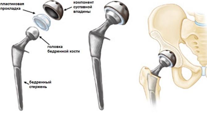 suprastiin valutab liigesed valu hommikul kate liigestes
