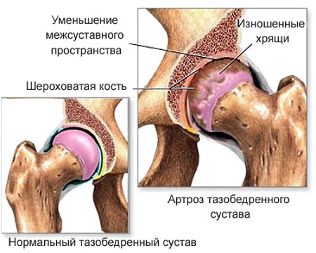 haigus liigeste ravi pidev valu pohjuse ja ravi liigestes