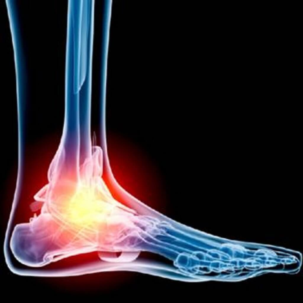 haigus ubade liigeste artroosi 1-2 kraadi ravi