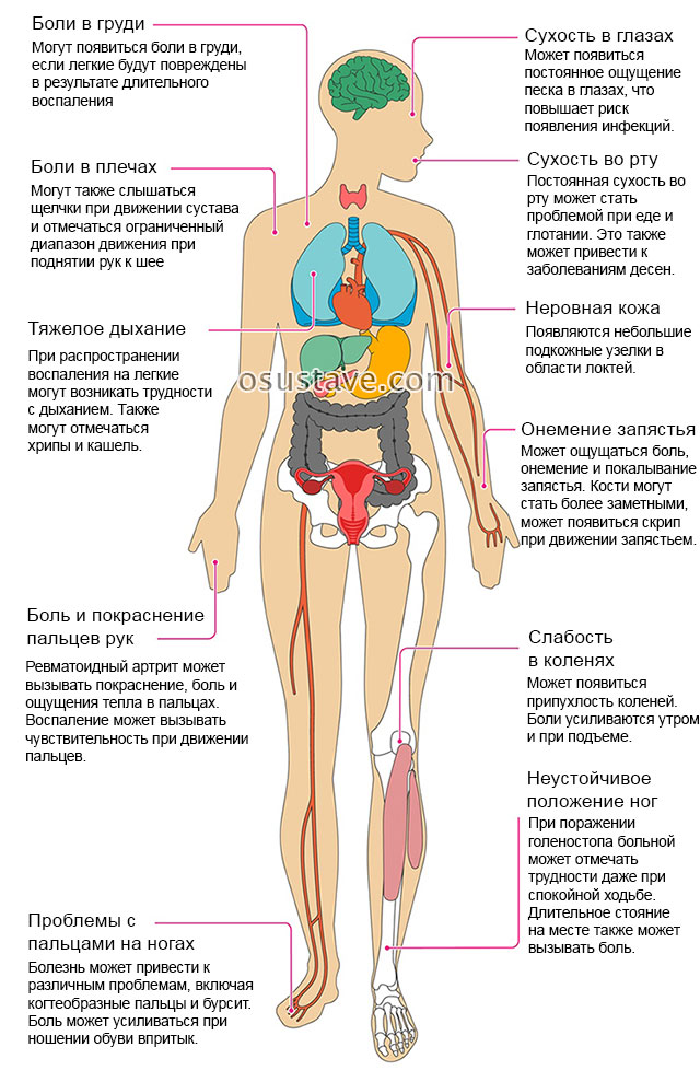 jalge klassifikatsiooni liigeste haigused