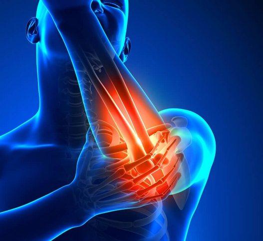 kuunarnuki haigus ja ravi osteokondroosiga crunch liigestega