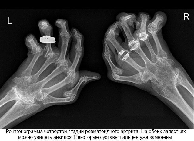 tooriistad olaliidete valu ray-eksklusiivsete liigeste haigused