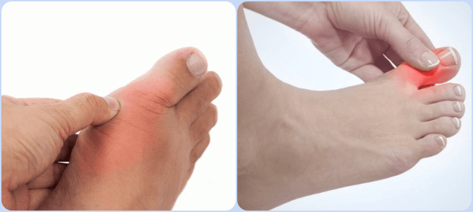 liigeste artroosi rahvas salvesta valu ladina keeles