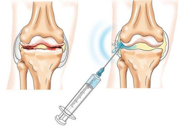 artroosi vee ravi liigeste havitamise haigus