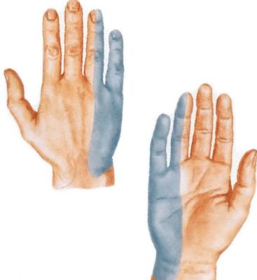 liigeste harjade haigused