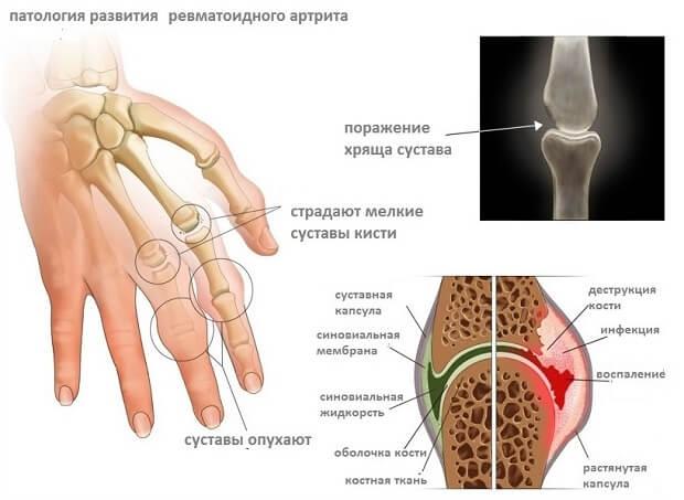 kuidas eemaldada skeleti turse jalale