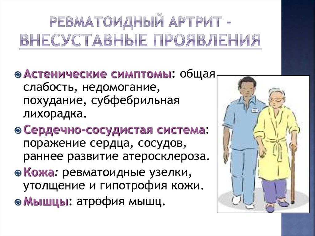 liigeste klassifikatsioonihaigused pediaatrilised valud