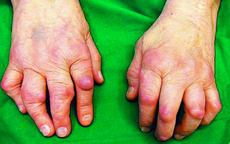 liigeste sormede artriidi ravi