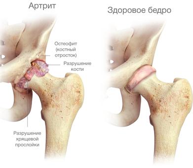 luude puljongid liigeste raviks arthrisa vaher