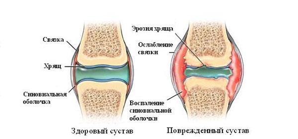 milliseid tunnete kui liigeste haige koore valu liigestes