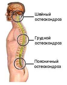 osteokondroosiga liigeste blokeerimine