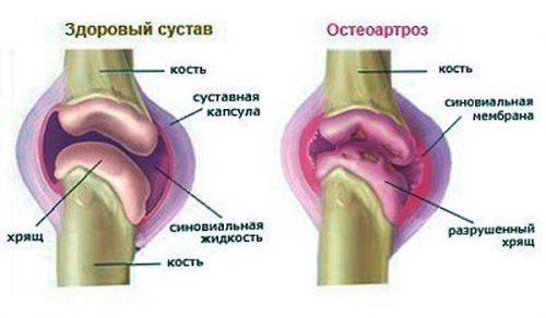 liigeste ravi ameloteks