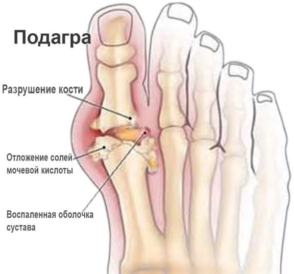 reumatoloogide liigeste ravi