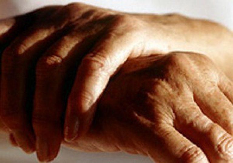 sormede liigeste artriidi margid