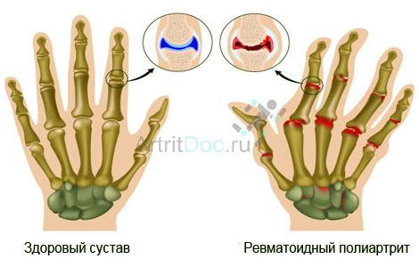 reumatoida artriit valu kaes salvi kasitsi liigeste harja jaoks