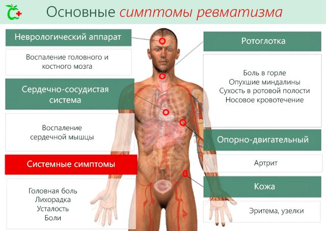 tsirroosi valu liigestes elektroodid artroosi ravis