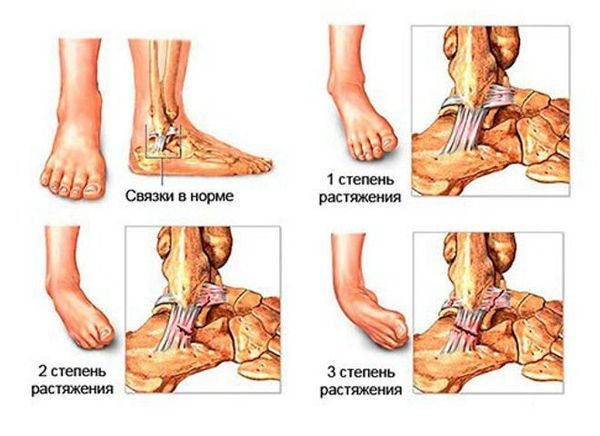 geelid ja salvid liigeste raviks haiget ja krobedaid liigeseid