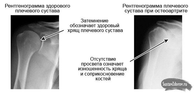 liigeste artriit et see on ravi viis patsientide kondroitiin ja glukoosamiini ulevaated